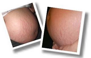 Get Rid And Erase Your Stretch Marks Natural Removal System