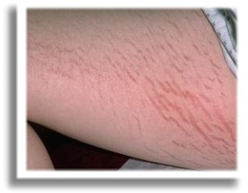 stretch marks on a thigh